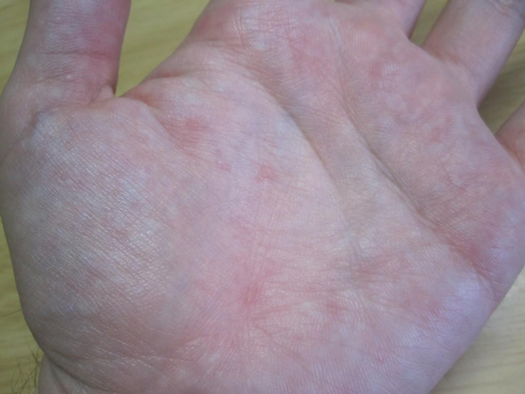 手の平の蕁麻疹が一番痒い