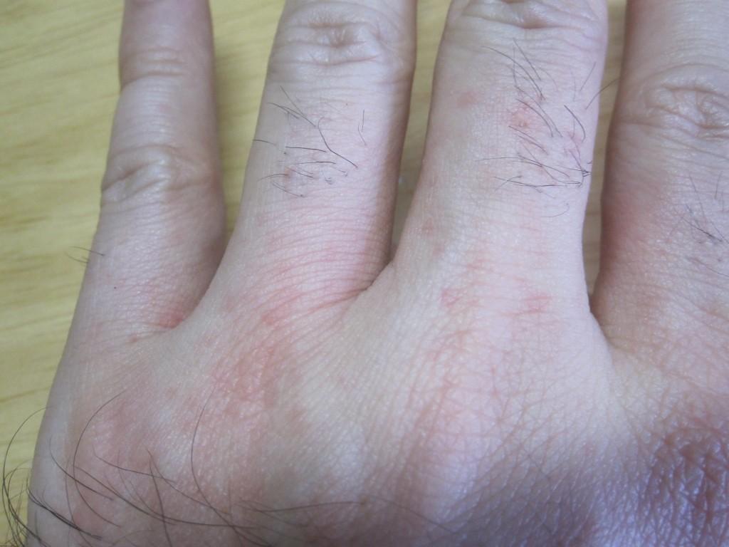 手の指、付け根に出てきた赤い発疹