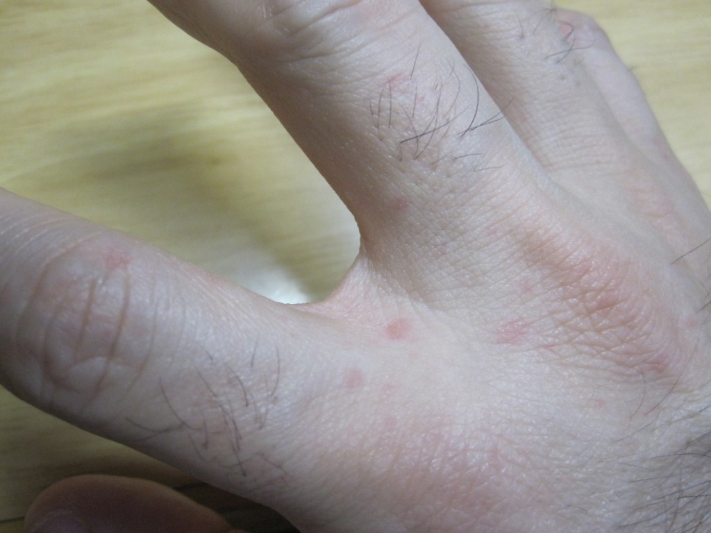 手の指と指の境目に出現した赤い発疹(じんましん)