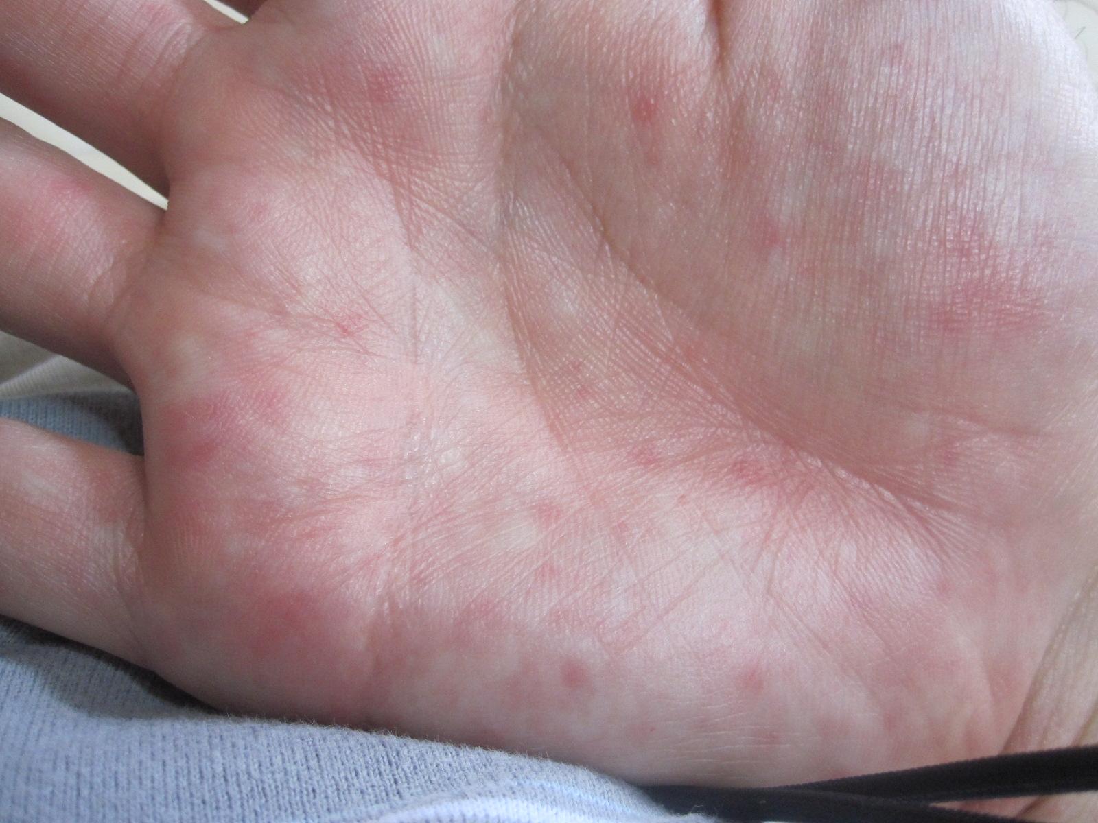 手に平に出現した赤い蕁麻疹