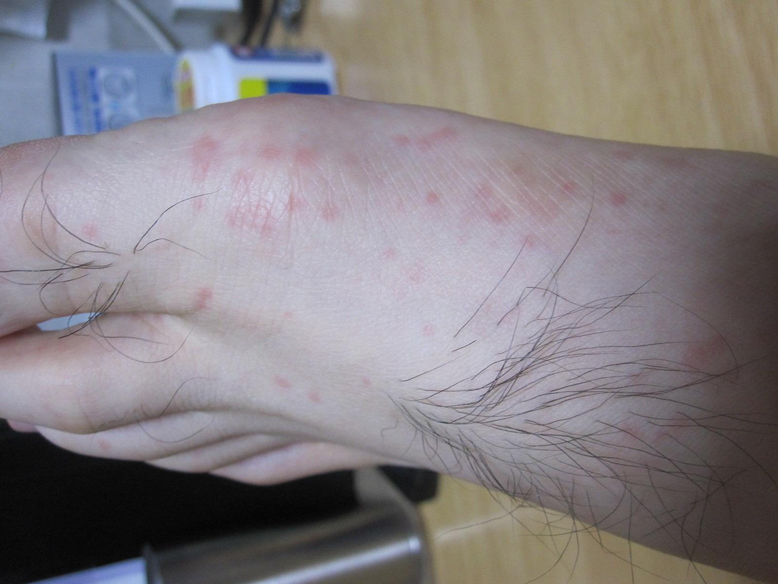 足の裏と甲に発症した蕁麻疹