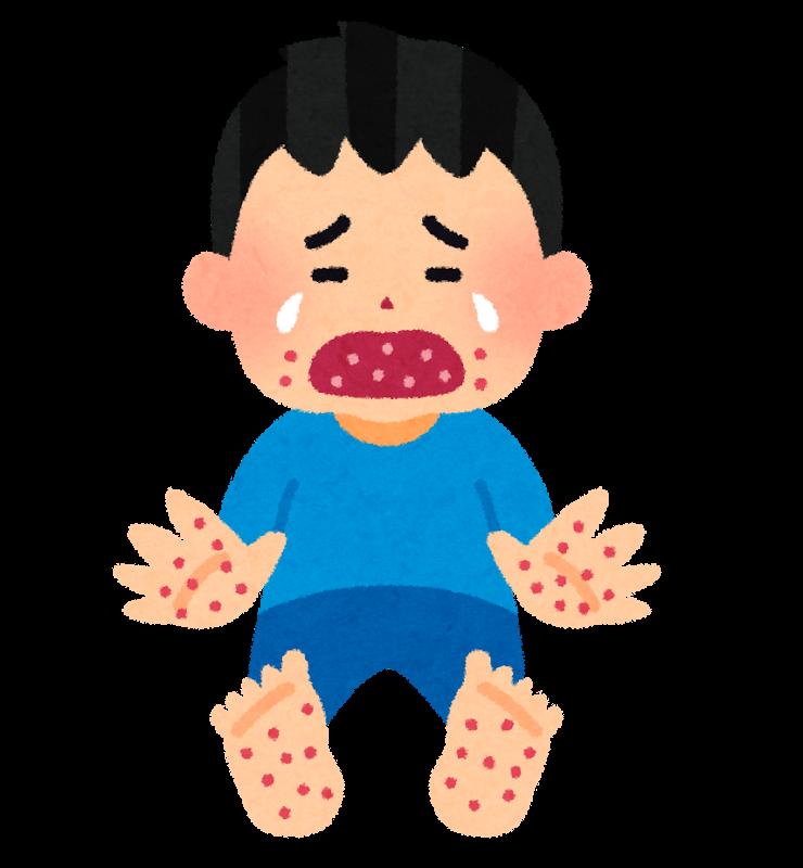 手足口病で泣き叫ぶ子ども・男の子