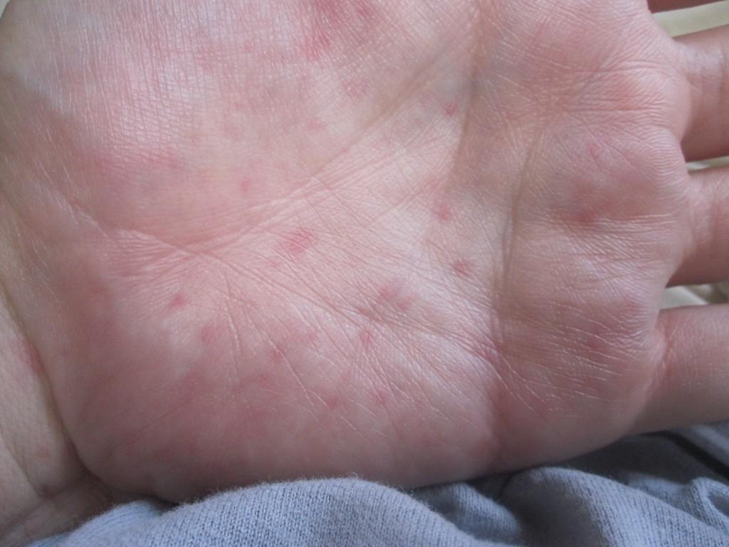 手の平に出てきた痒いコリン性蕁麻疹