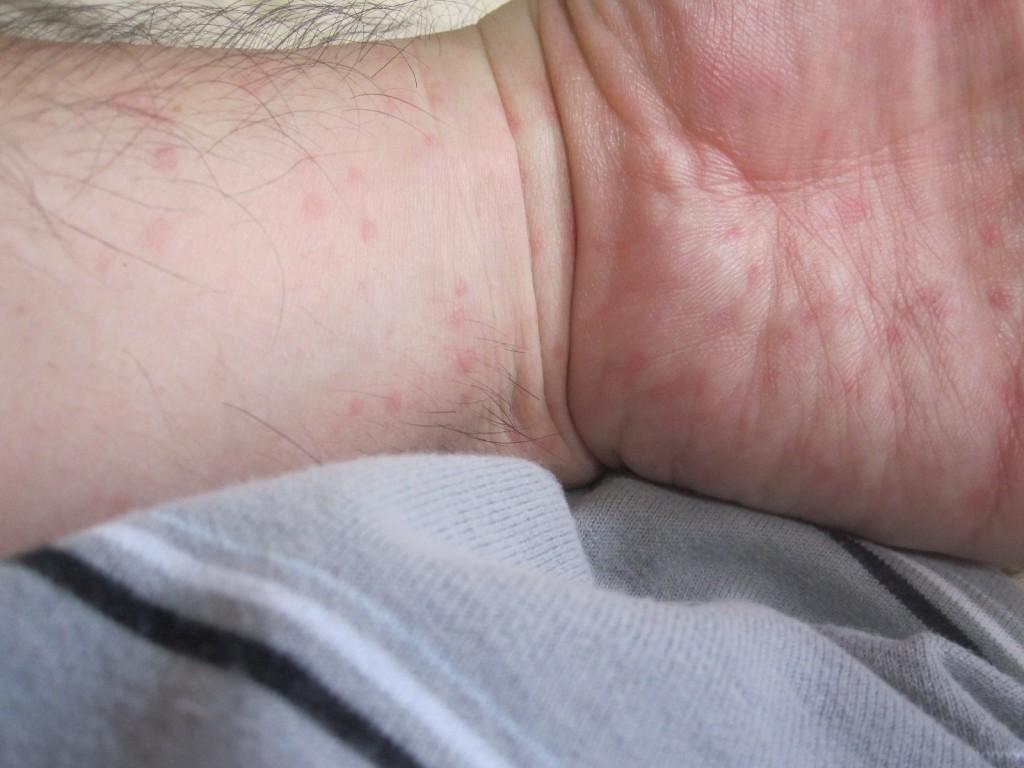 手首から手の平にかけて出現した蕁麻疹