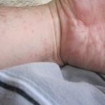 コリン性蕁麻疹の悩みと不安のストレスで別の病気が誘発されそうで怖い