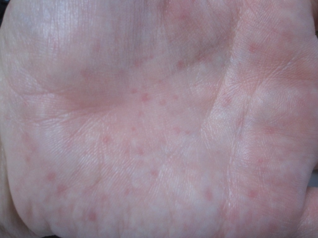 ピリピリとチクチクが混ざった感覚の蕁麻疹