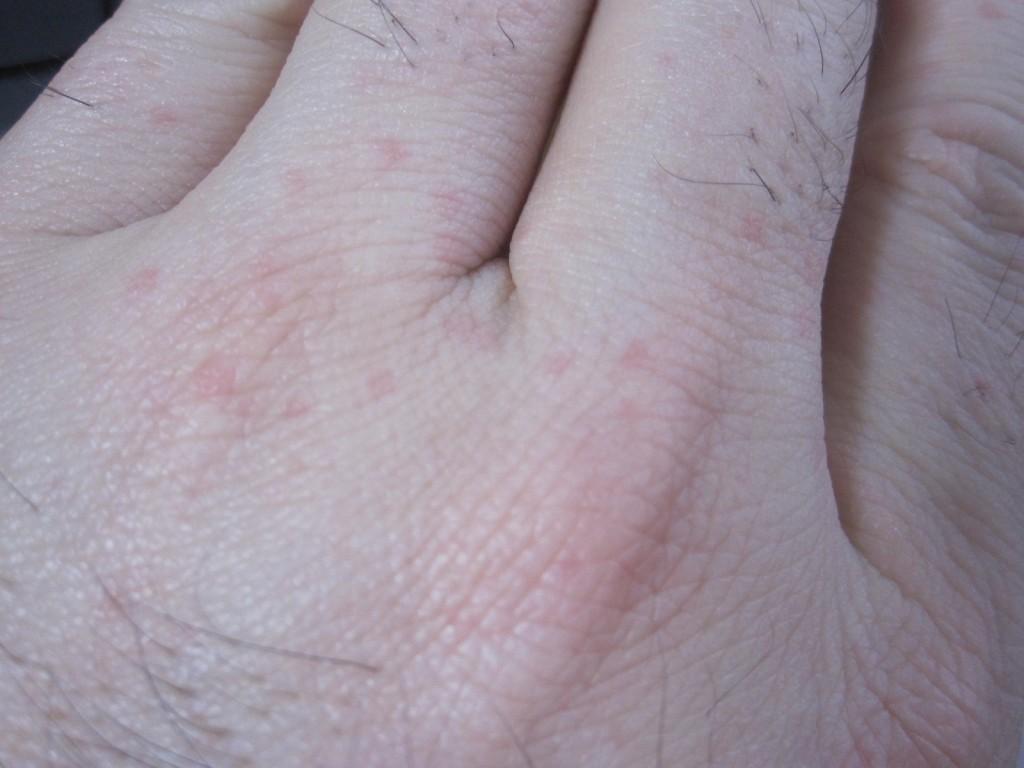 手に現れた赤い発疹の蕁麻疹
