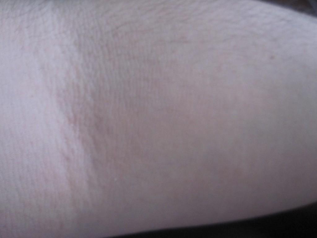 コリン性蕁麻疹が出ていない腕