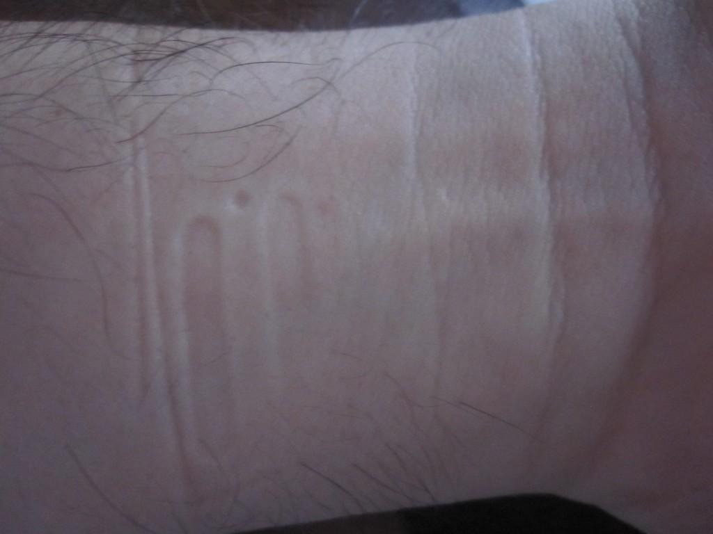 発疹が見当たらない手首
