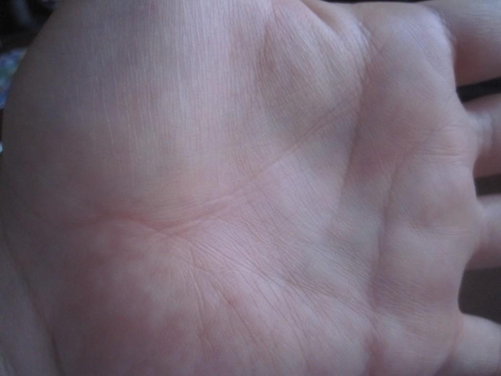 蕁麻疹のない手の平