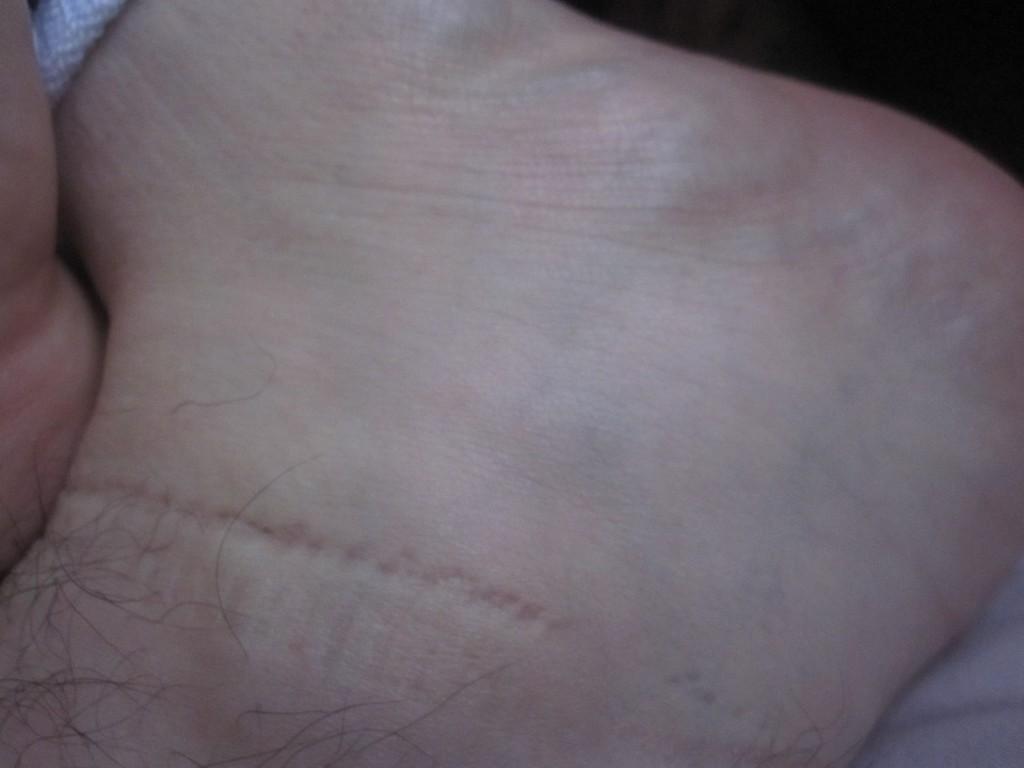 蕁麻疹のない足の側面