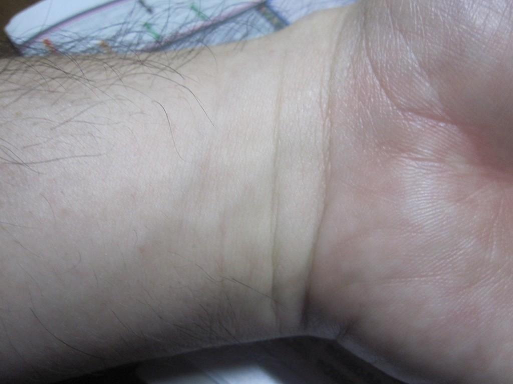 皮疹・膨疹の兆候がない手首