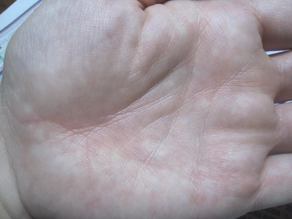 蕁麻疹がないから痒くない手