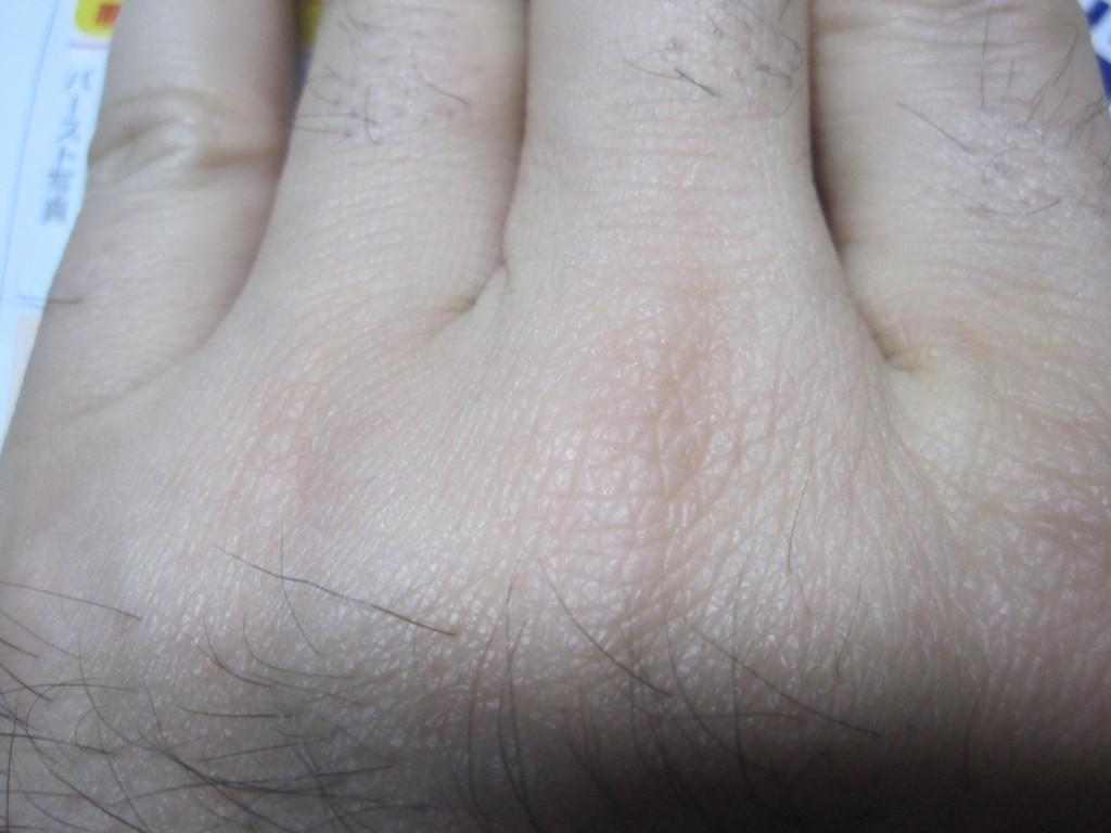 コリン性蕁麻疹が出ていない手