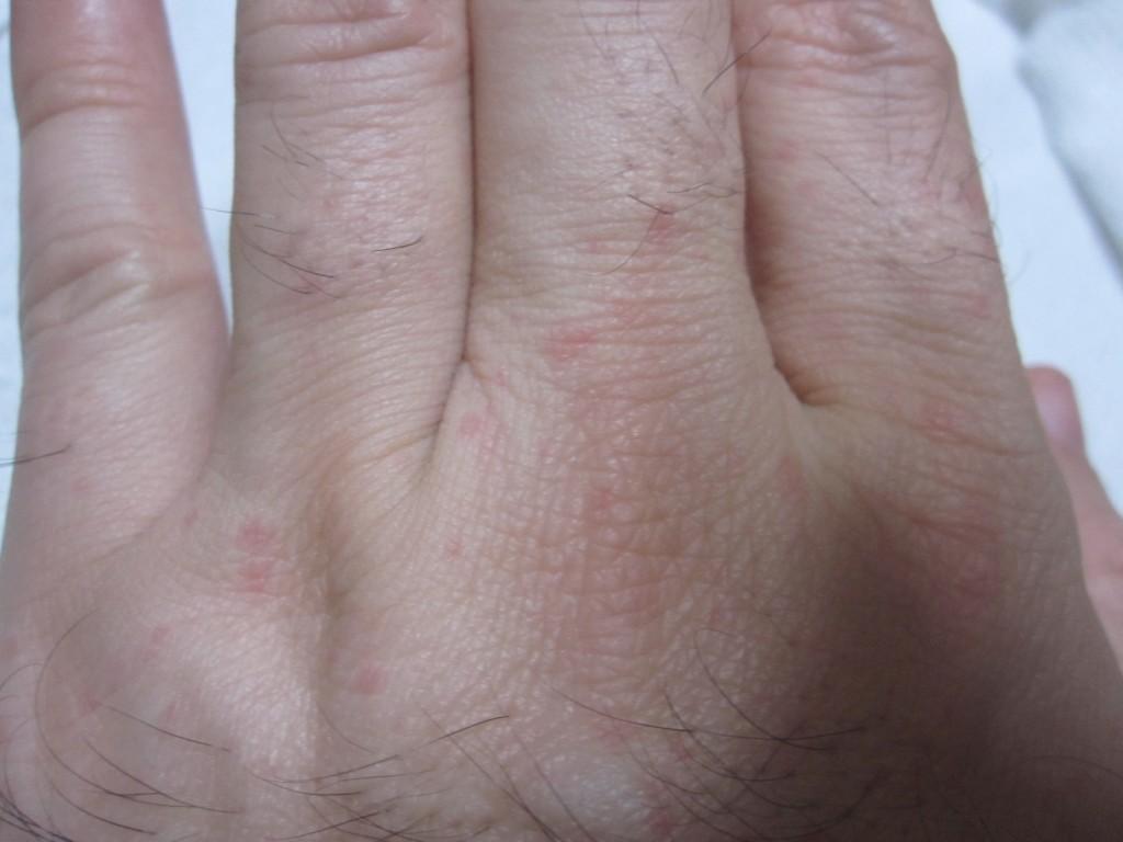 手の表面・甲にプツプツと赤い発疹が出ている
