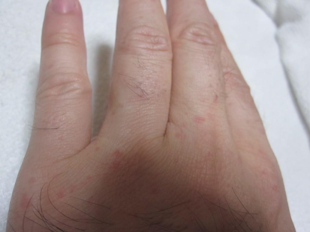 手の指にも痒い蕁麻疹が現れた