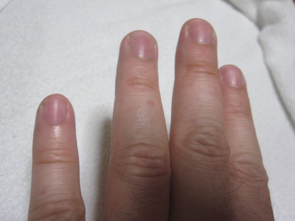 手の指先にまでコリン性蕁麻疹は出てくる