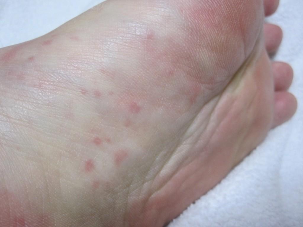 左足の裏に出たコリン性蕁麻疹