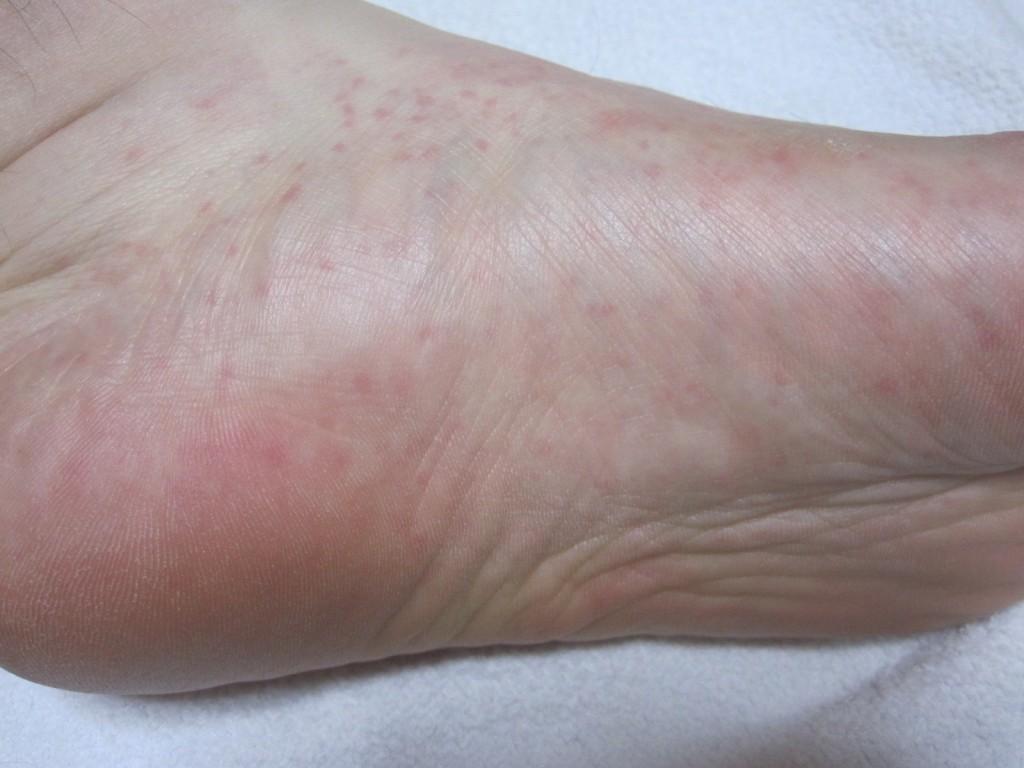 足の裏から側面と甲にかけて発症したコリン性蕁麻疹