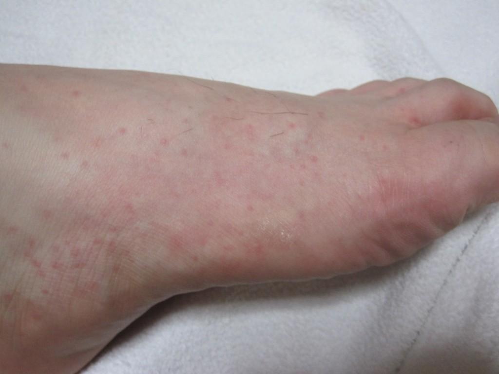 足の側面と甲に現れたコリン性蕁麻疹