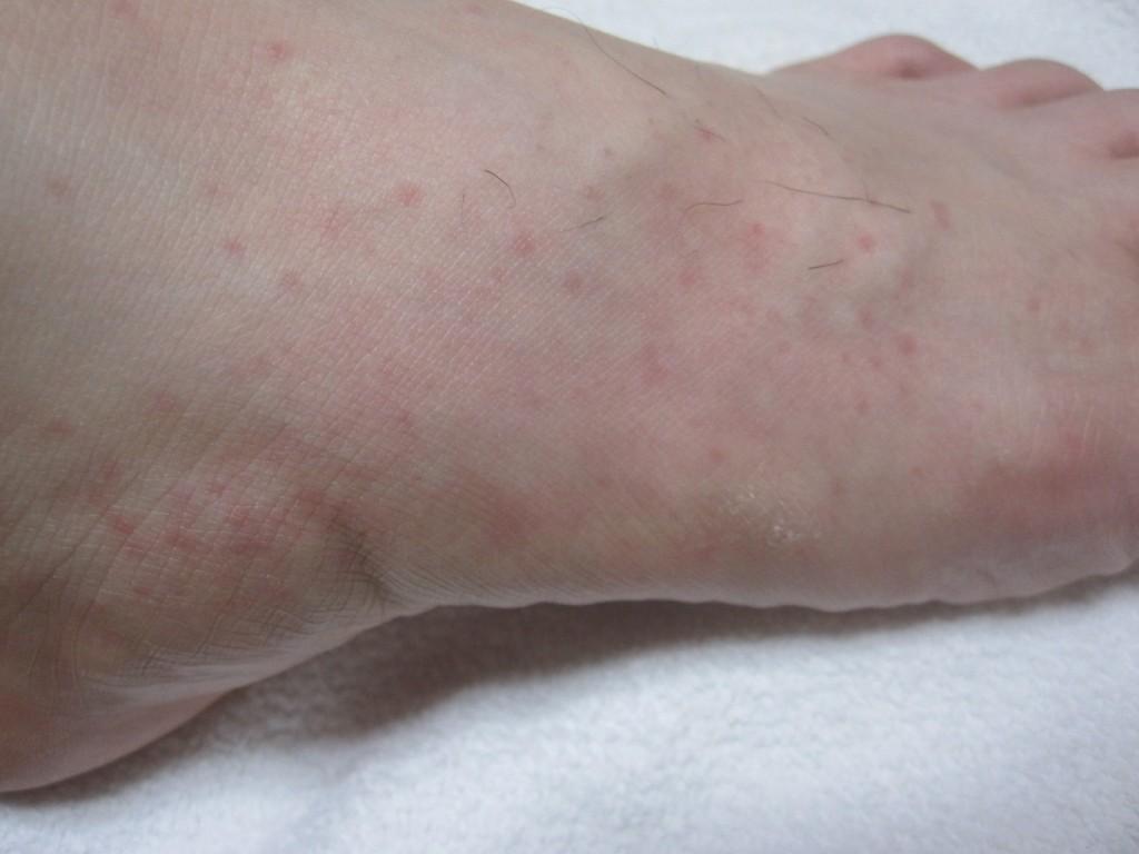 とてつもなく痒い足の蕁麻疹