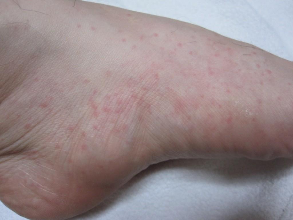 赤い斑点ぶつぶつがキモイ蕁麻疹