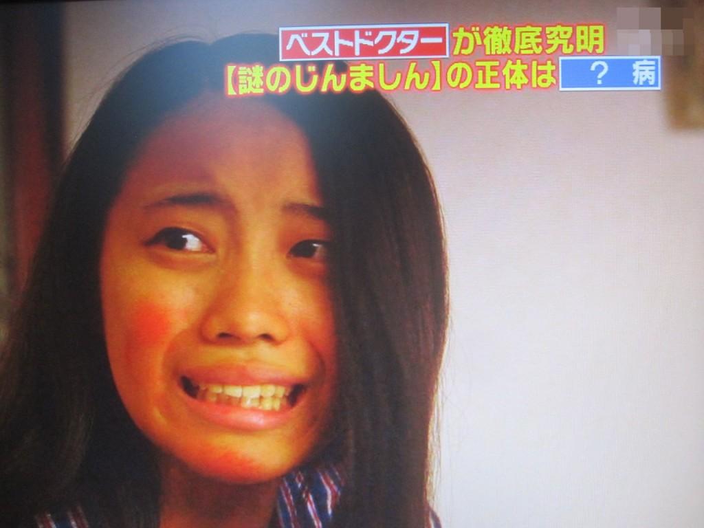 """原因不明の""""謎のじんましん""""に絶望の淵に陥る少女の悲痛な表情"""