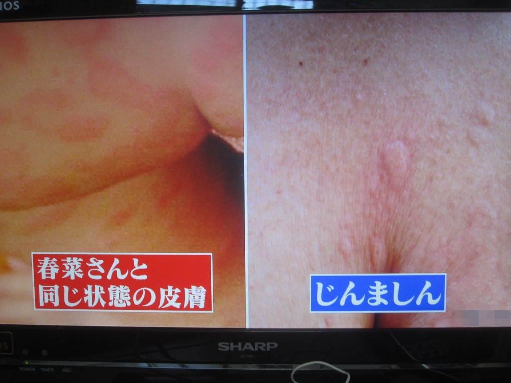"""""""謎のじんましん""""と通常の蕁麻疹の症状の皮膚の違い比較"""
