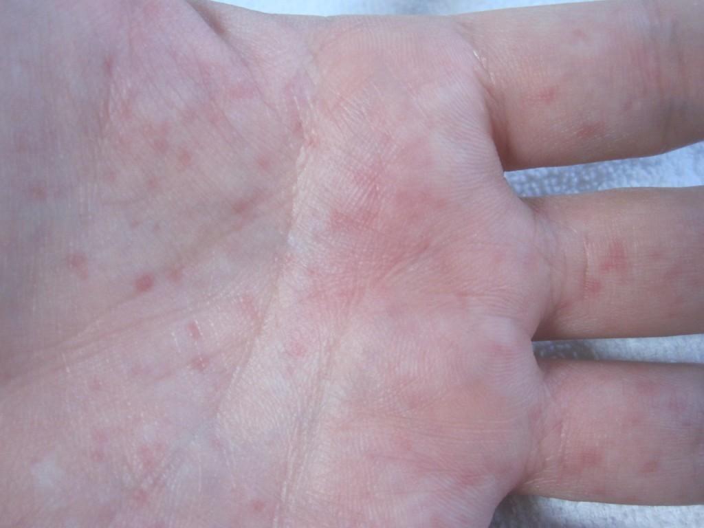 手の平にでてきたコリン性蕁麻疹の赤い発疹