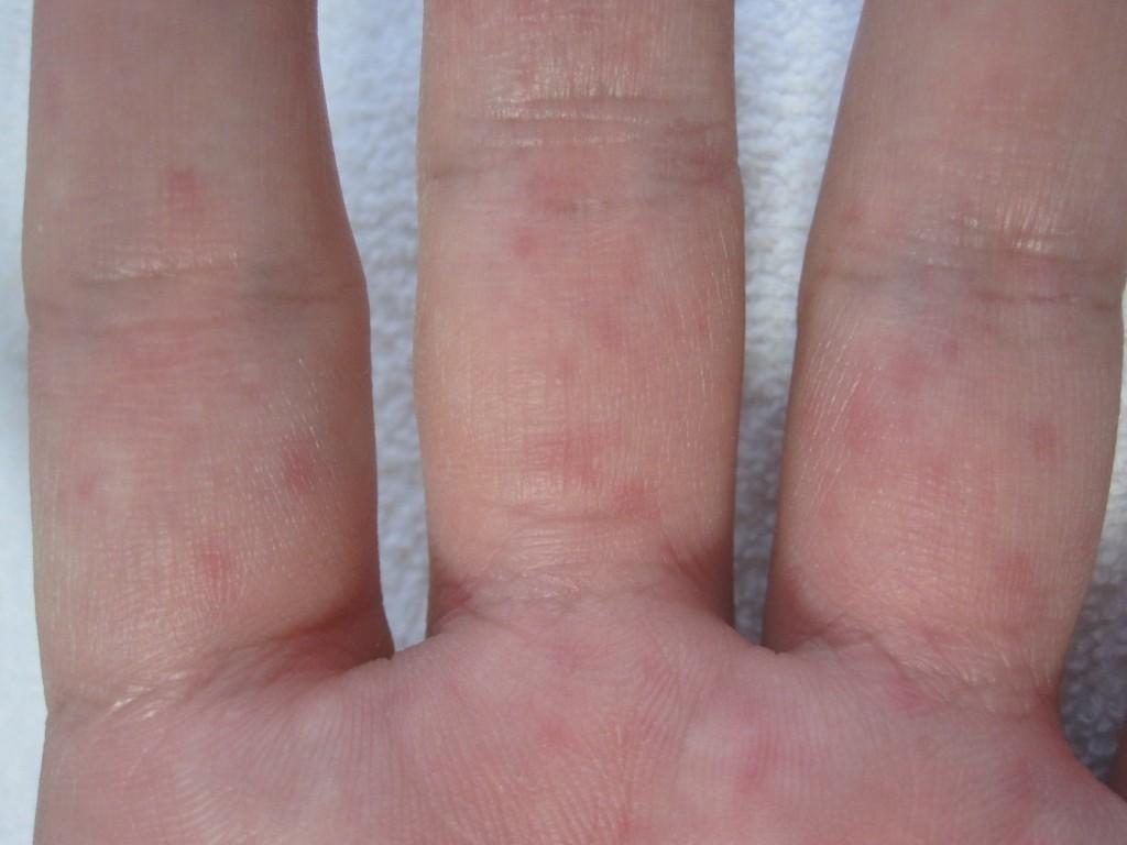 手の平 側の指にコリン性蕁麻疹が発生している