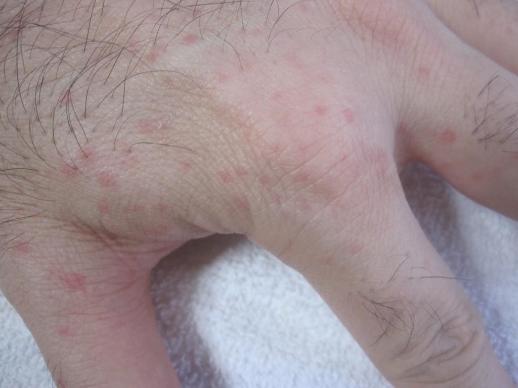手にできたコリン性蕁麻疹
