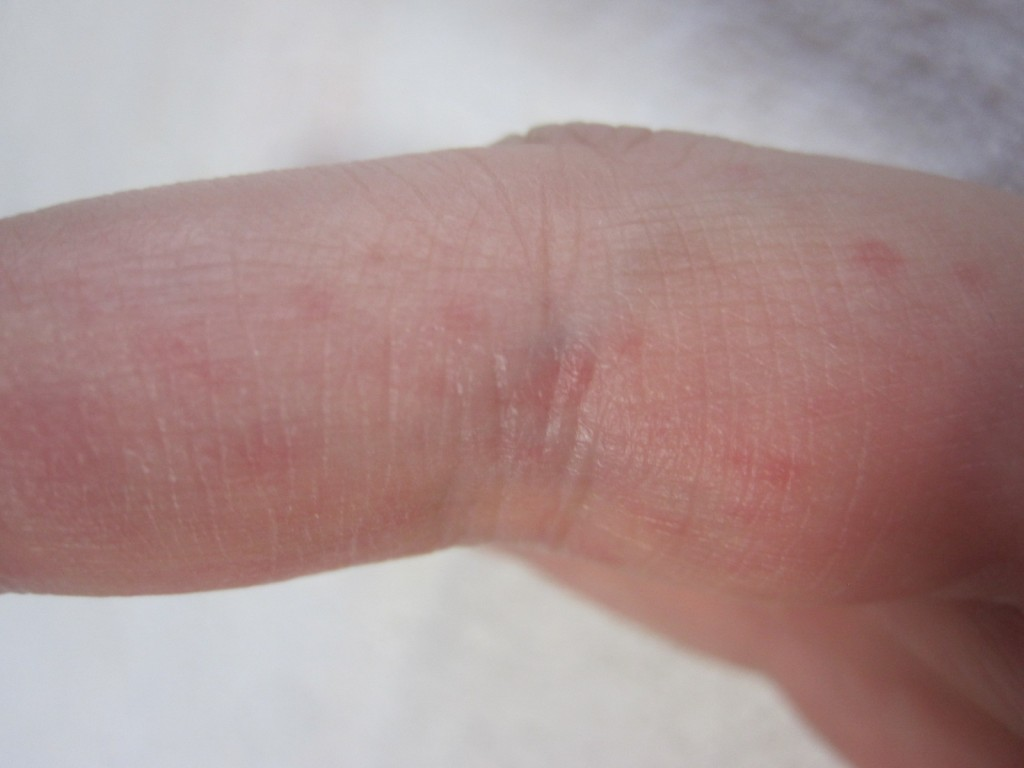 手の指に現れた痒いコリン性蕁麻疹