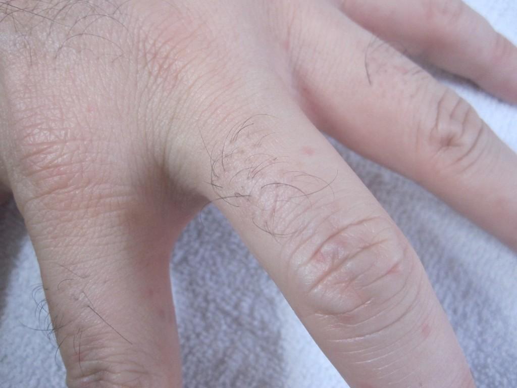 数時間後に自然とコリン性蕁麻疹が消えた手