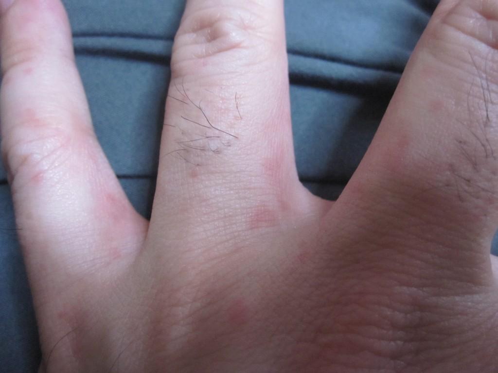 指と水かき部分に現れたコリン性蕁麻疹