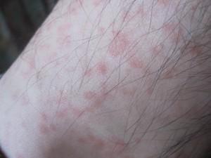 足首にも大量の蕁麻疹が発生しだした
