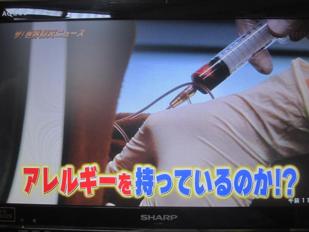 アレルギー検査のために血液を採っている場面シーン