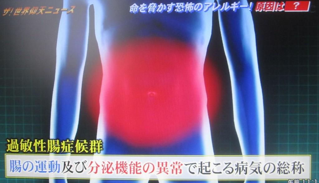 腸の運動、及び分泌機能の異常で起こる病気の総称