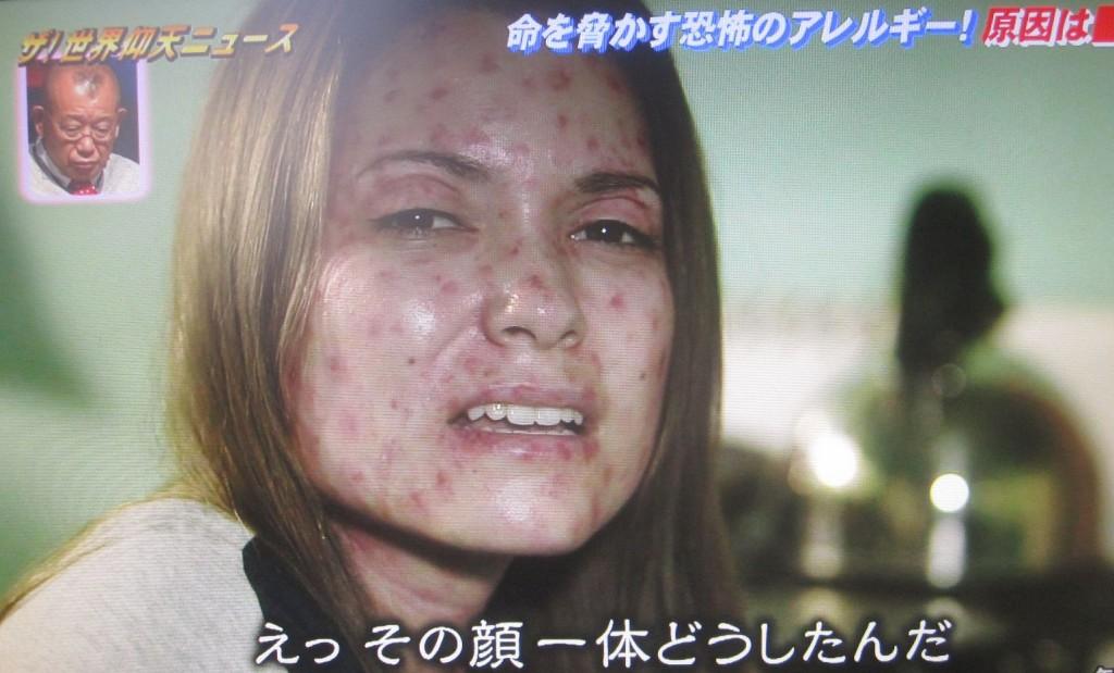 顔全体に出た発疹を家族・彼氏が心配する