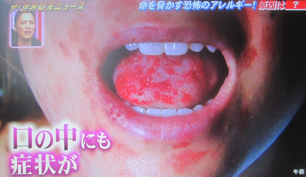 口の中・舌にまで症状が出ている
