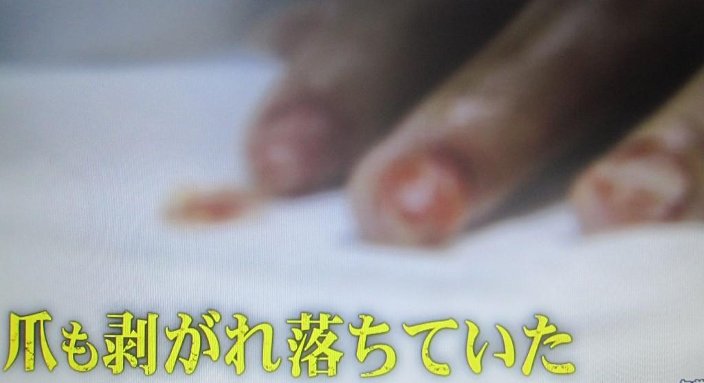 なんと、爪も剥がれ落ちていた