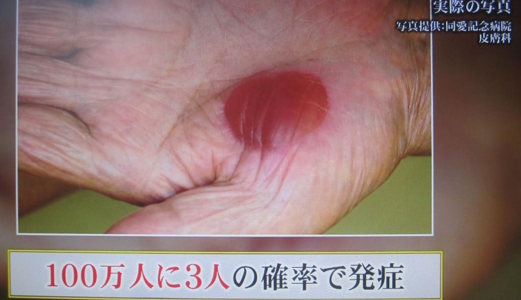 100万人に3人の確率で発症する珍しいアレルギー症状