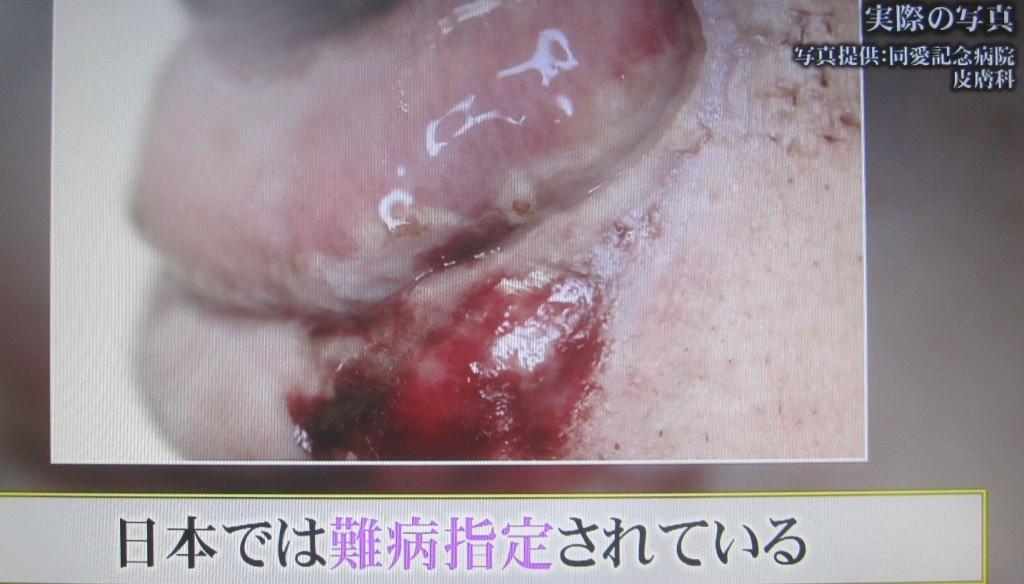 スティーブンス・ジョンソン症候群は、日本では難病指定されている