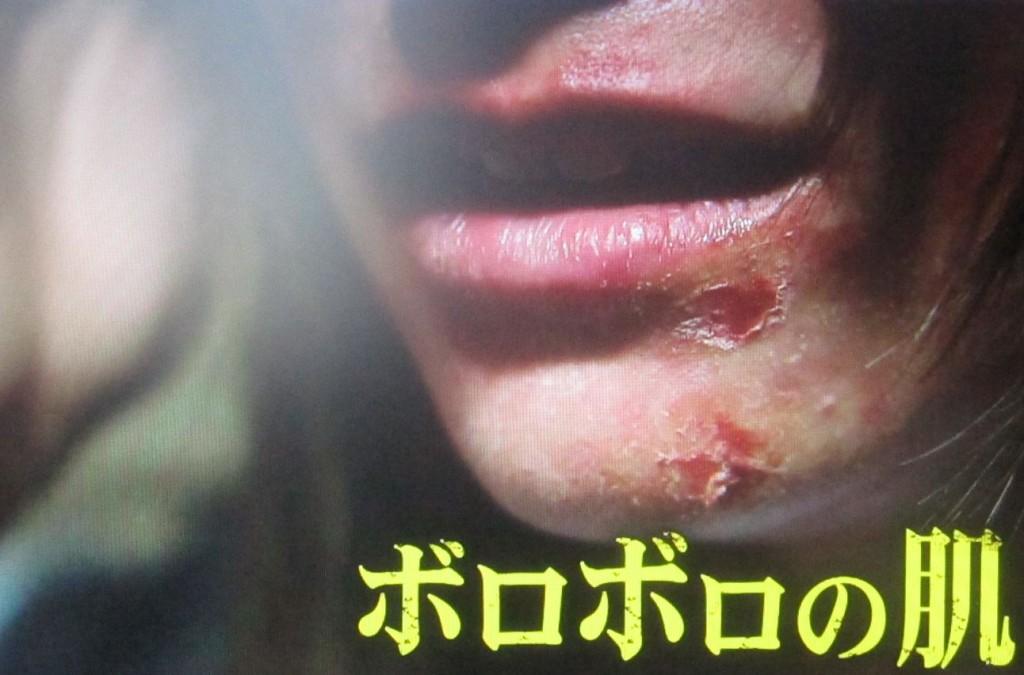 ボロボロの状態になった顔の皮膚・肌