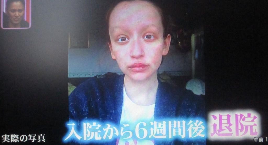 実際の写真 入院から6週間後に退院した女性