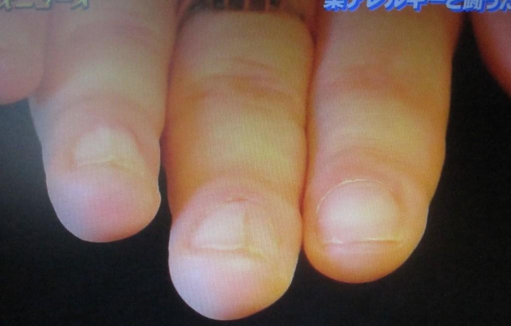 剥がれ落ちた爪もだいぶ治っている