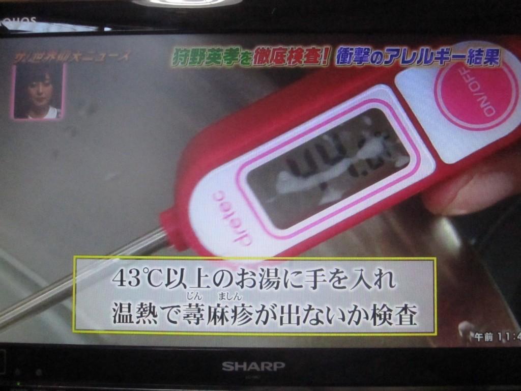 43℃以上の湯に手を入れ、温熱で蕁麻疹が検査する