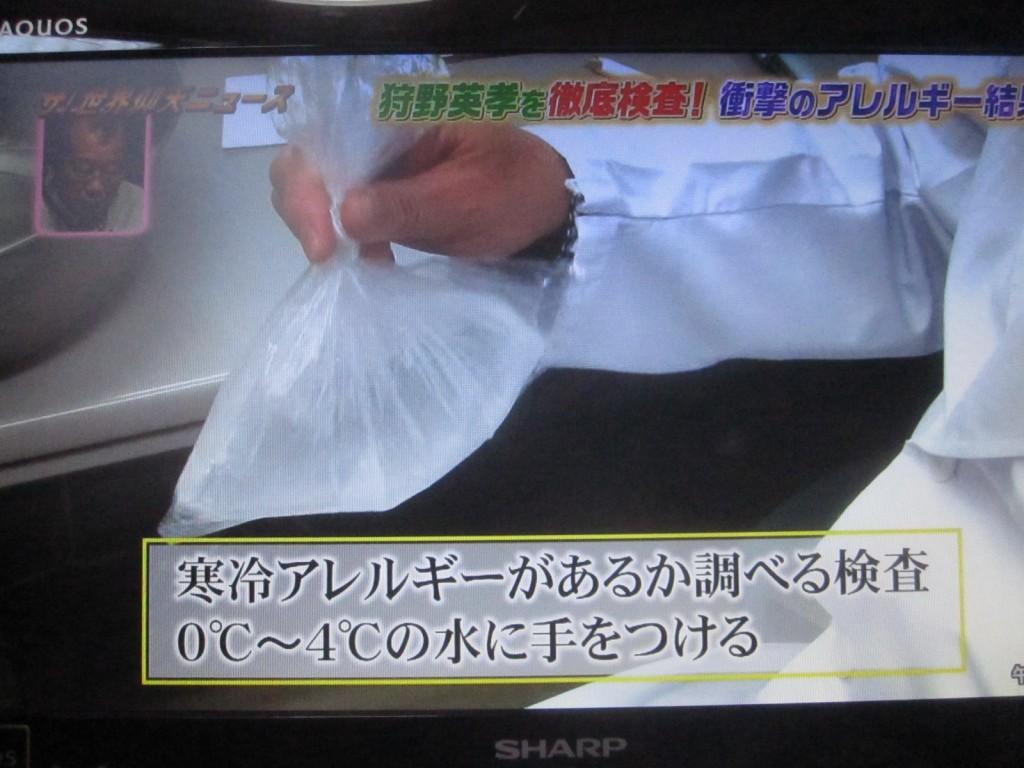 寒冷アレルギーの有無を調べるため0℃~4℃の水に手を入れる検査