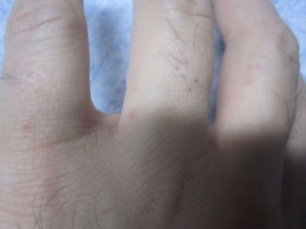 手の指にも赤い蕁麻疹が現れ出した