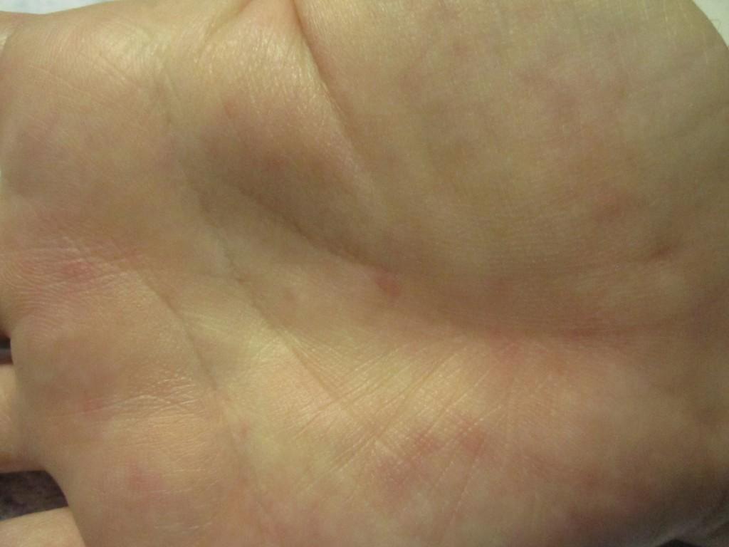 手の平のポツポツ赤みを帯びた蕁麻疹