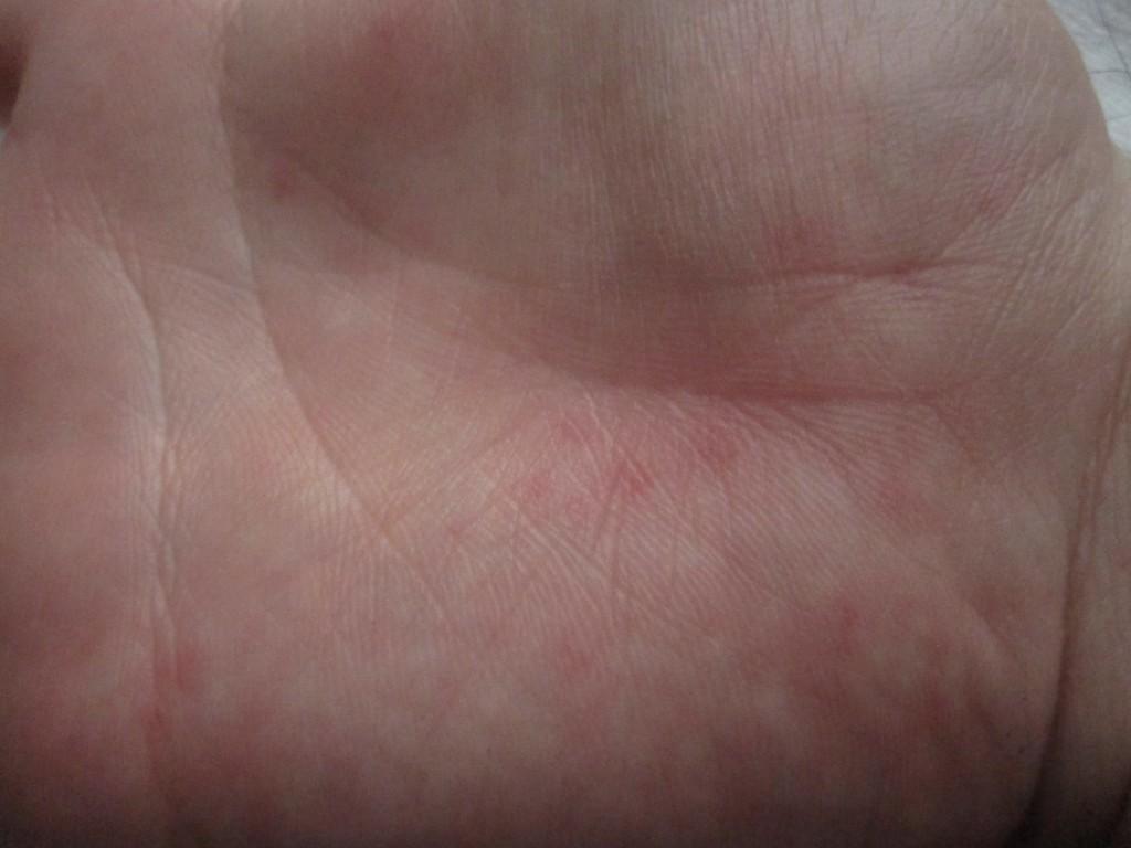 手の平に痒い感触と一緒に出てきた蕁麻疹